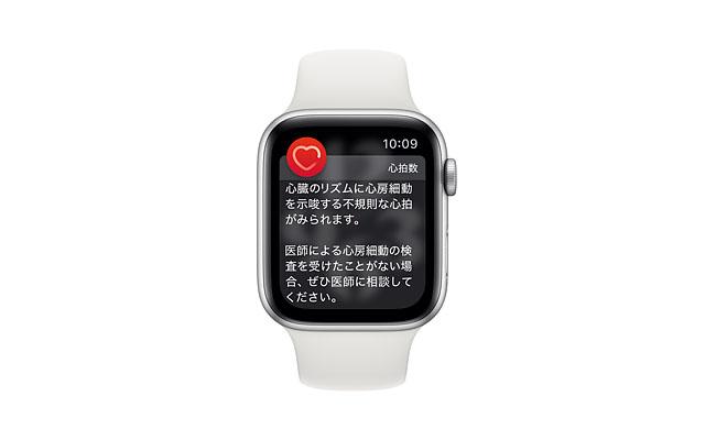 Apple Watch「心電図」アプリ、日本でも利用可能に